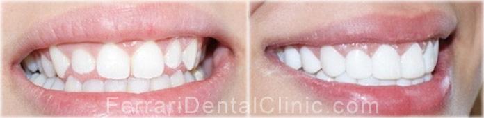 composite veneers hollywood smile