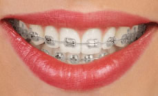 orthodontics-apliances