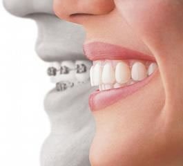 orthodontics-apliances7