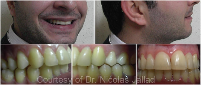 orthodontics-diagnosis