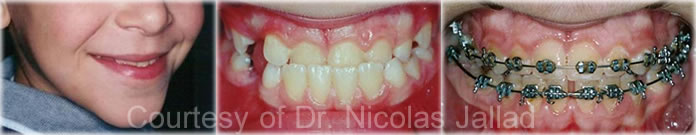 orthodontics Early Treatment of Class 3