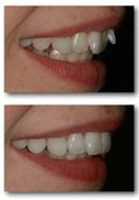 orthodontics-inman6