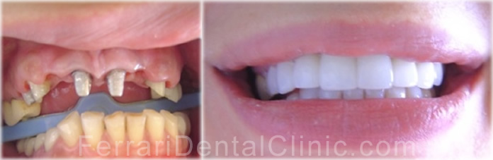 veneers-cosmetics-hollywood-smile